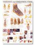 Zdravé a choré nohy